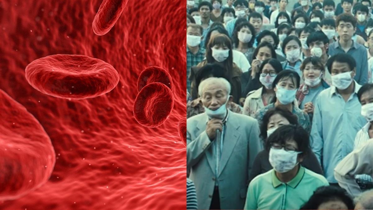 《流感》現實上演?韓2患者血漿治療 康復出院