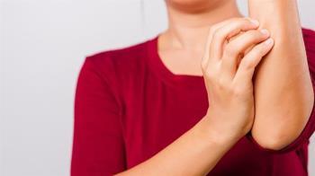 異位性皮膚炎該如何照護? 醫師點出生活5大地雷