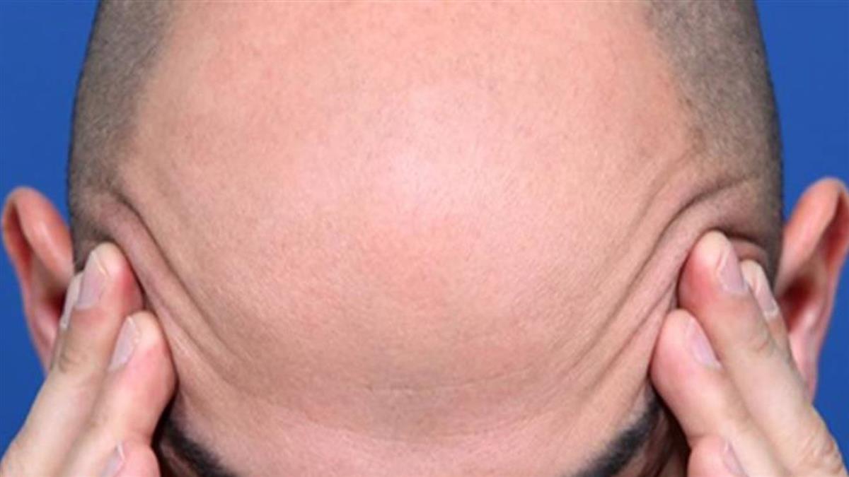 男子禿髮別信偏方!擅用避孕藥洗頭恐有女性特徵