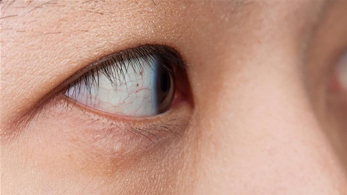 看東西變得模糊扭曲? 黃斑部病變嚴重恐導致失明
