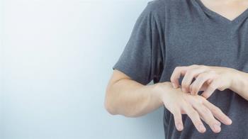 天冷加上溼氣重 中醫提醒避免溼疹爆發內外除溼不可少
