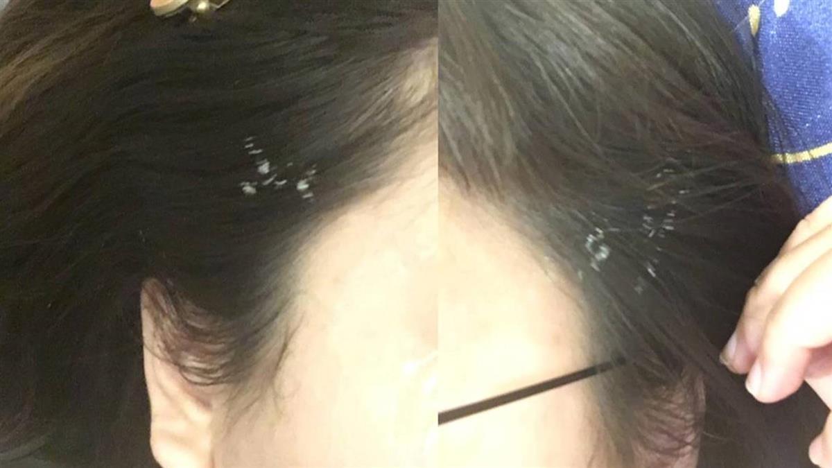 進廠維修遭醫生射到頭髮 正妹見白崩潰:想剪掉
